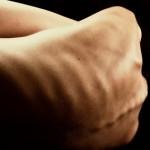 Ursachen der Anorexia nervosa